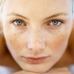 Freckles and Melasma