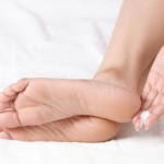 HOW TO CURE DRY CRACKED HEELS AT HOME