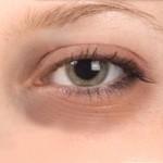 How to get rid of dark circles under Eyes?